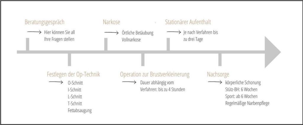 Schema: Ablauf einer Brustverkleinerung in Starnberg